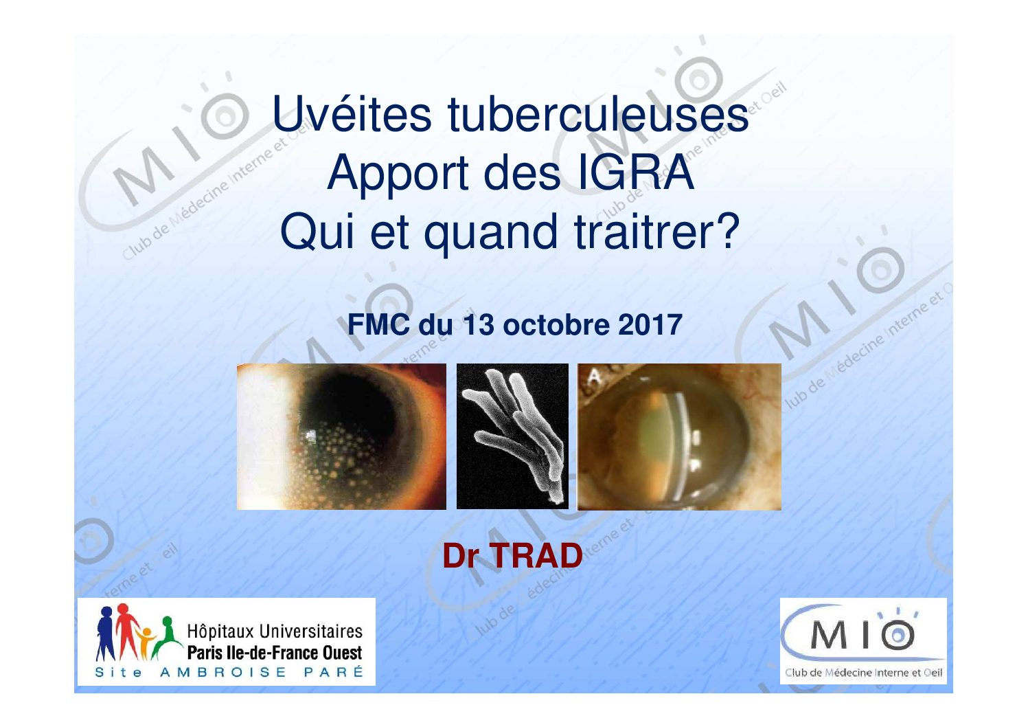 Uvéites tuberculeuses apport des IGRA : qui et quand traiter ?
