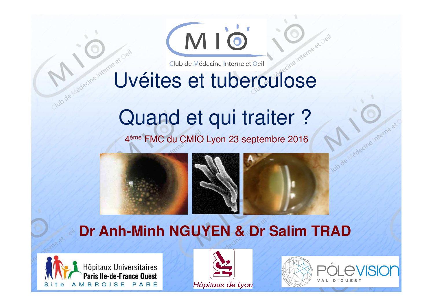 Uvéites et tuberculose : quand et qui traiter ?