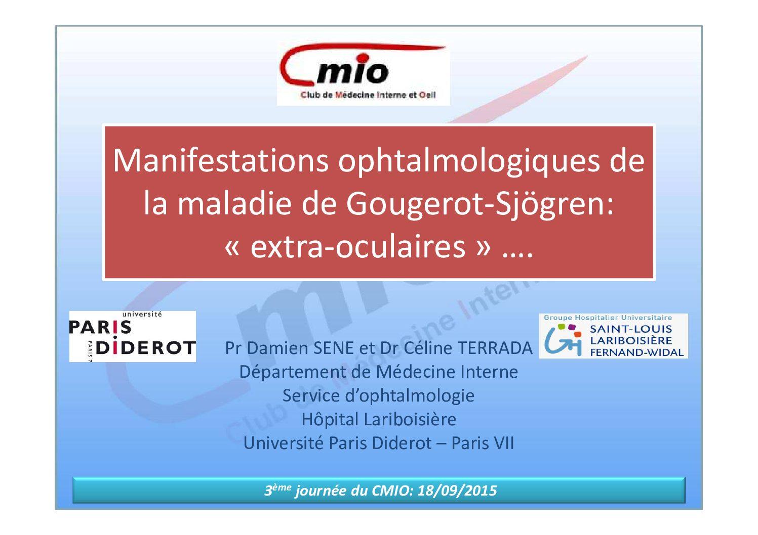 Manifestations ophtalmologiques du syndrome de Goujerot-Sjögren