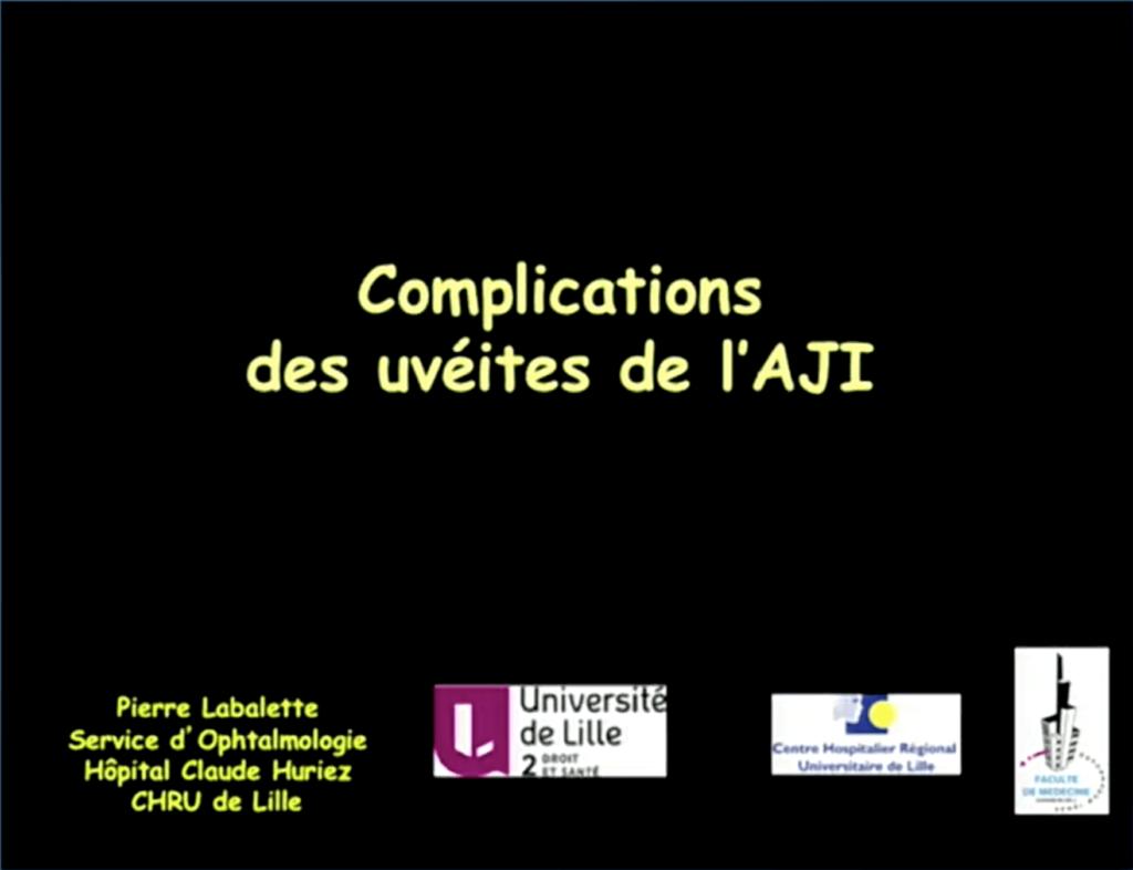 Complications des uvéites de l'AJI Cover