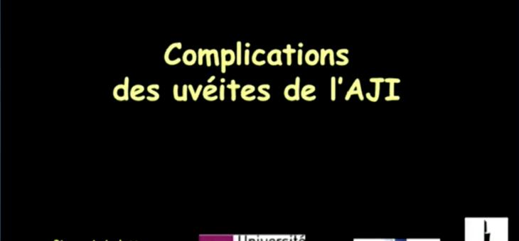 Complications des uvéites de l'AJI