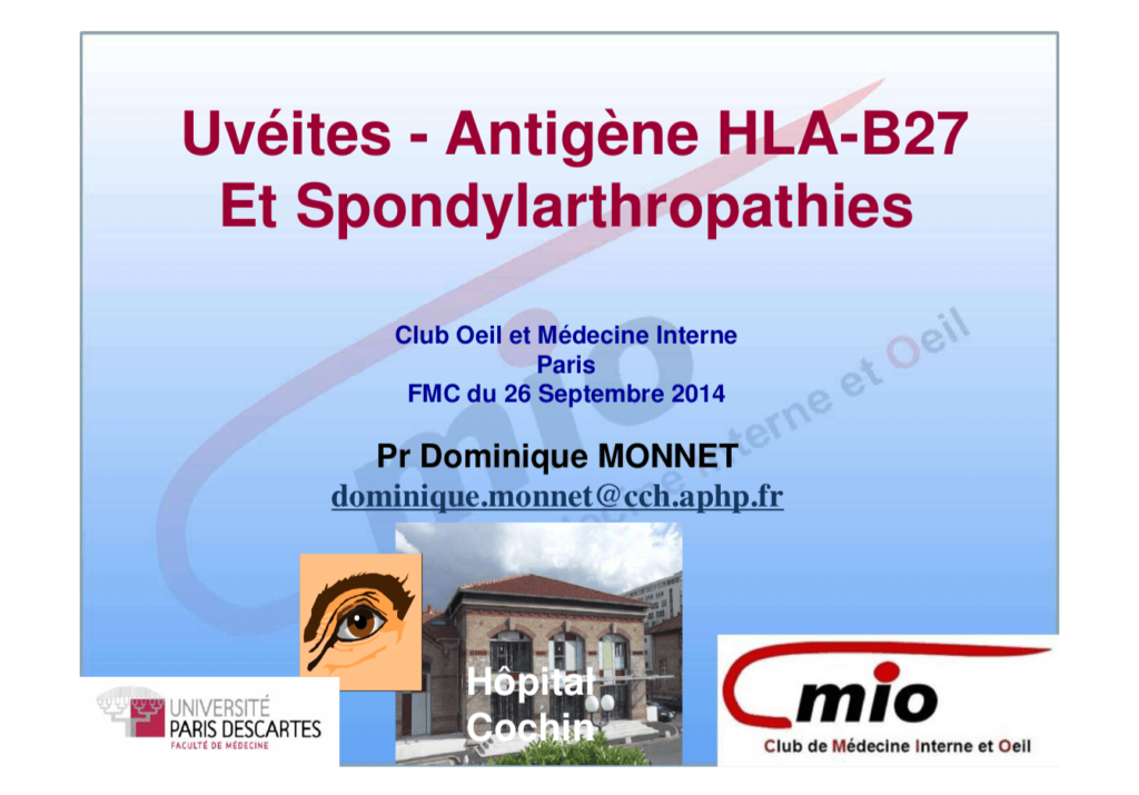 Uvéites - Antigène HLA B27 et spondylarthropathies