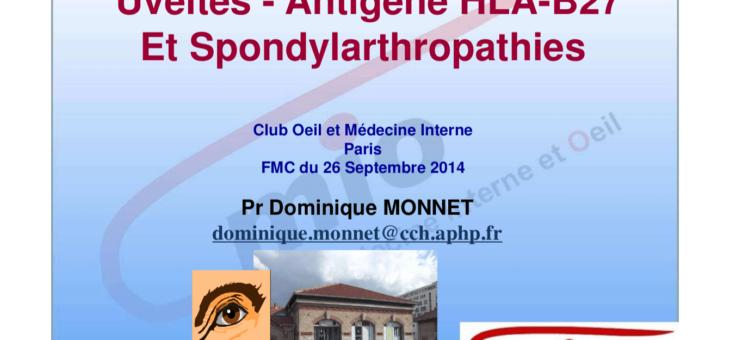 Uvéites – Antigène HLA-B27 et spondylarthropathies