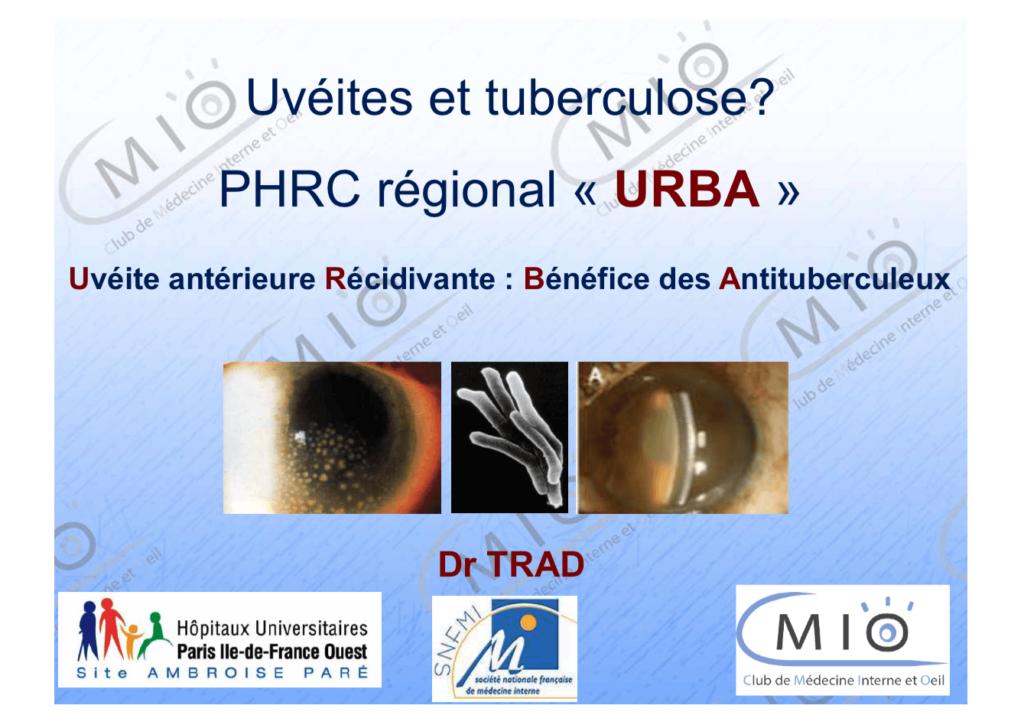 Uvéites et tuberculose ? Projet URBA