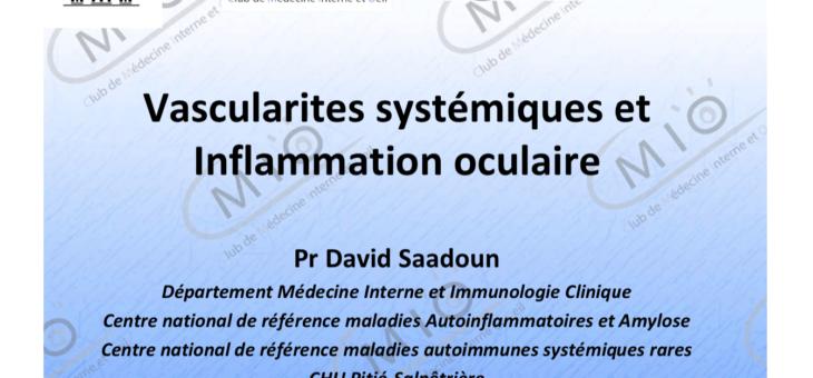 Vascularites systémiques et inflammation oculaire
